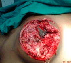 Clean wound after debridement