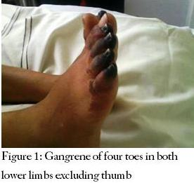 Gangrene of four toes in both lower limbs excluding thumb